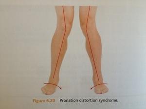 http://modernhealthmonk.com/chronic-pain-posture-imbalances/